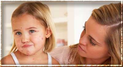 Высыпания на коже у детей