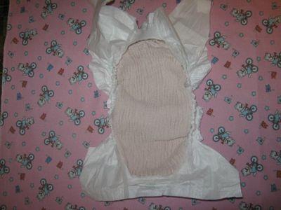 Аллергия у ребенка на памперсы